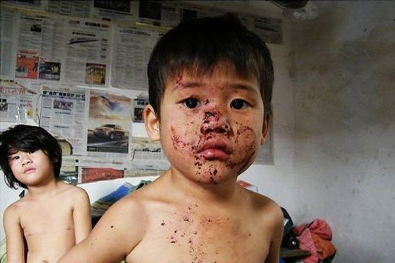 child-abuse-ningbo-china