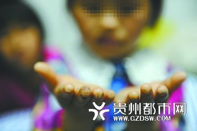 china-guizhou-little-girl-abused-by-father-burned-head-boiling-water-04