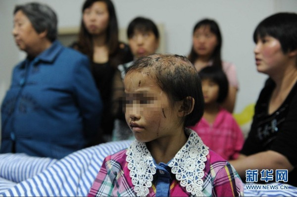 china-guizhou-little-girl-abused-by-father-burned-head-boiling-water-c-600x399