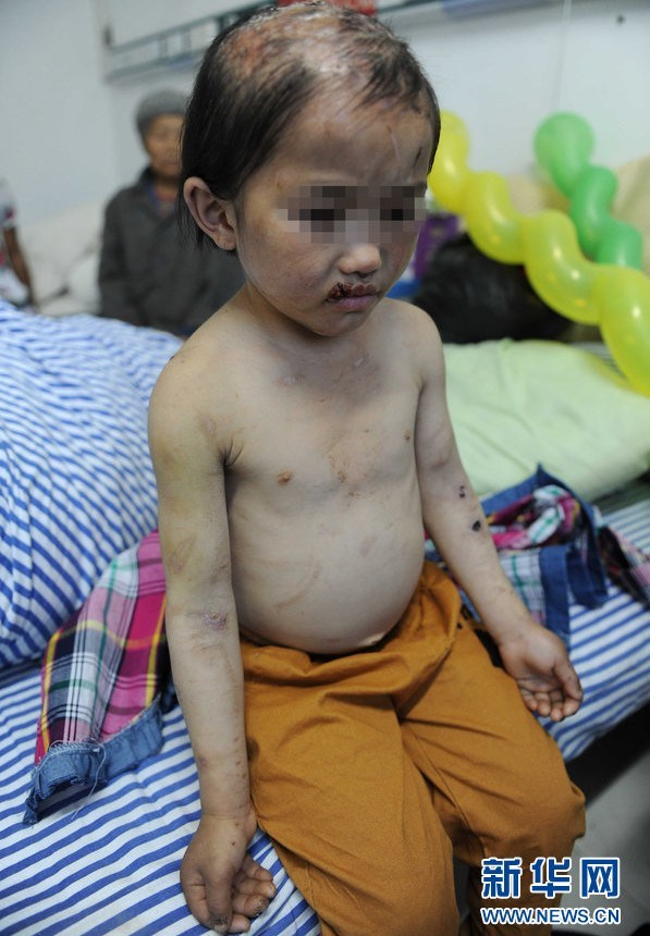china-guizhou-little-girl-abused-by-father-burned-head-boiling-water-d (1)