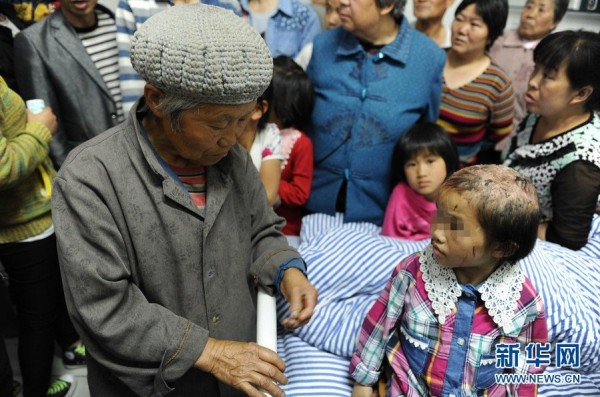 china-guizhou-little-girl-abused-by-father-burned-head-boiling-water-e-600x397